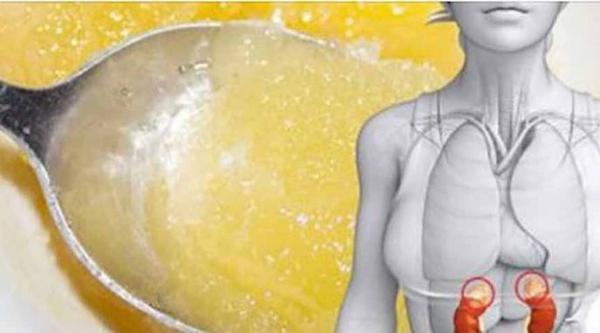 Medus su ciberžole: galingiausias antibiotikas, kurį netgi gydytojai negali paaiškinti!